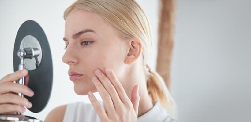Akne und Rosacea lassen sicht mit Fluoresenzlicht-Energie von Kleresca effektiv behandeln.