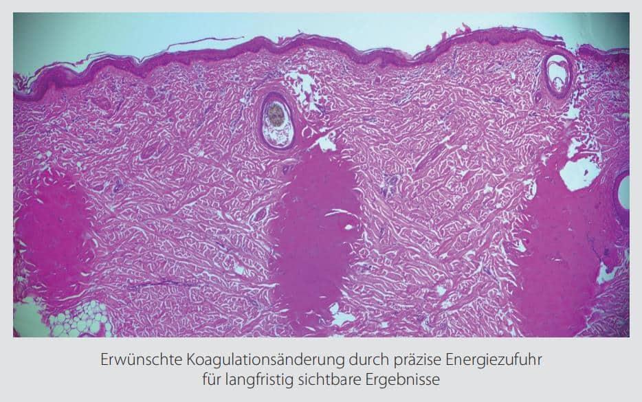 Hautverjüngung-durch-Mikronadel-Behandlung