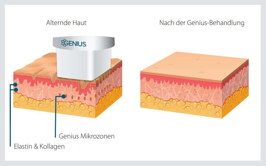 Anti-Aging-Hautaufbau
